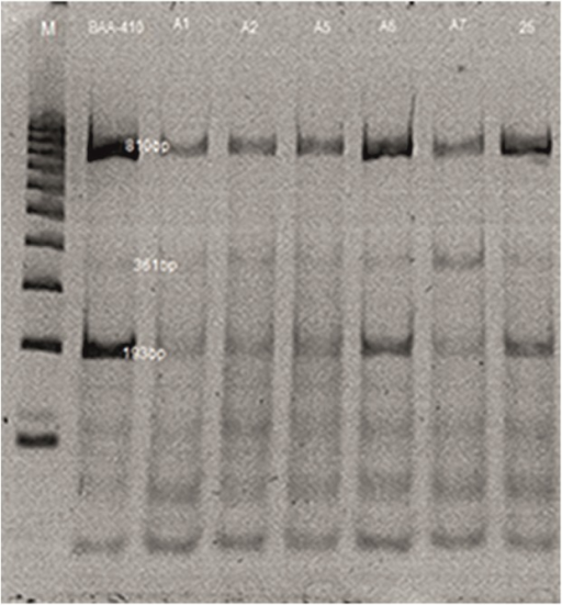 Restriction analysis profiles of phages from M. haemolytica isolates single-digested with TaqI (lines 1–7).Legend: φPHL-1 (from strain BAA-410); φA1; φA2; φA5; φA6; φA7; φ25; M—DNA markers (100–1000 bp, Fermentas).