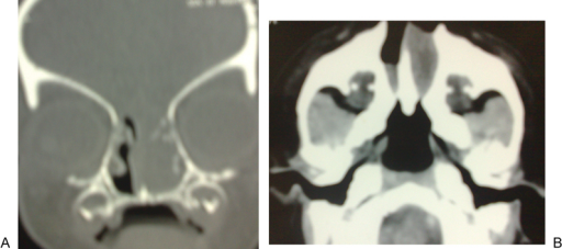 Another case, A; Coronal CT showed soft tissue density in the nasal cavity appeared continuous with the brain parenchyma due to lack of ossification of the floor of the anterior cranial fossa. B; Axial CT showed bilateral choanal atresia appeared thick due to accumulated secretion in front.