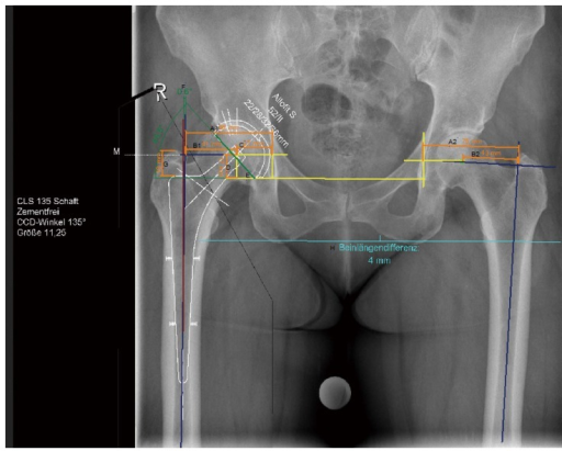 Digital planning of cup and stem for total hip arthropl ... C Cup Vs D Cup Implants