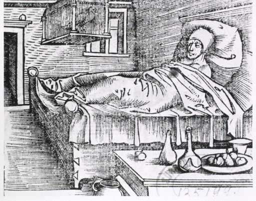 <p>Syphilitic patient in bed, swollen leg and lump on head showing.</p>