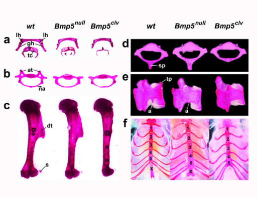 Bmp5clv mutation causes more severe skeletal defects than a Bmp5  (Bmp5) mutation. Alizarin red-stained bones of 12-week +/+, Bmp5/Bmp5, and Bmp5clv/Bmp5clv mice show the following: (a) shortening of the greater horn (gh) and lesser horn (lh) of the hyoid bone and decreased calcification of the thyroid cartilage (tc), (b) absence of anterior tubercles (at) and thinning of the neural arch (na) of the 6th cervical vertebra, (c) reduction of the sesamoid (s) and nearly complete loss of the deltoid tuberosity (dt) of the humerus, (d) absence of the spinous process (sp) of the 2nd thoracic vertebra, (e) absence of the transverse process (tp) and anapophysis (a) of the 3rd lumbar vertebra, and (f) abnormal fusion of posterior sternal segments and loss of the xiphoid process (x) at the end of the sternum in Bmp5clv/Bmp5clv mice.