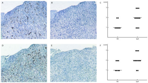 Semi-quantitative assessment of vascularization in synovial tissue by immunohistochemistry. Magnification 100×. (a to c) von Willebrand Factor staining. (a) Positive endothelial cells are detected. (b) Isotype control. (c) Positive (sub)endothelial cells and fibroblasts are detected. (d to f) CD34 staining. (e) Isotype control. (c and f) Scores in different patient groups.