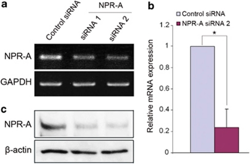 NPR-A small-interfering RNA (siRNA) induces efficient knockdown of NPR-A in murine ES cells. (a) RT-PCR analysis of ES cells transfected with control siRNA or NPR-A siRNAs, showing knockdown of the NPR-A gene 48 h after siRNA transfection. GAPDH was used as the internal control. (b) Real-time PCR analysis of ES cells treated with control siRNA or NPR-A siRNA2. (c) Western blot analysis of ES cells treated as described in panel a, showing a reduced level of the NPR-A protein 48 h after siRNA transfection. β-Actin was used as a loading control. Data represent mean±S.D. (n=3); *P<0.05 (two-tailed t-test)