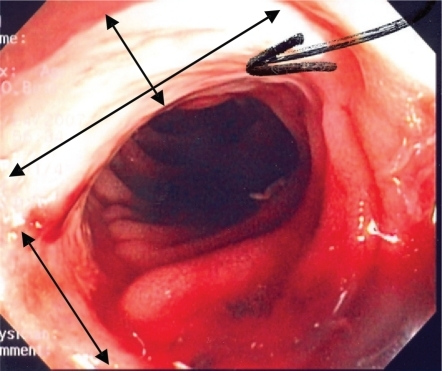 Endoscopic view of the terminal ileum with evidence of large deep serpiginous mucosal ulceration (double headed arrows).