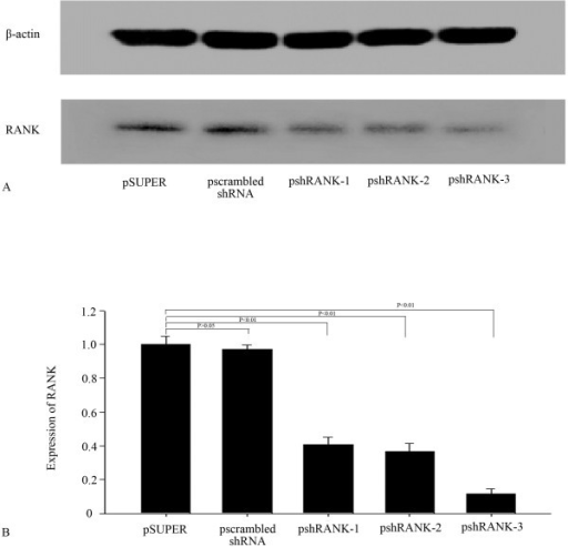 Western blot for RANK (A) and the inhibition rate of psh RANK-1, psh RANK-2 and psh RANK-3 (B) in BMMs. Figures 1 RANK gene expression inhibited by shRNAs and the inhibition rate of psh RANK-1, psh RANK-2 and psh RANK-3. Lane 1: Psuper-retro-puro; lane 2: pscrambled shRNA; lane 3: psh RANK-1; lane 4: psh RANK-2; lane 5: psh RANK-3.
