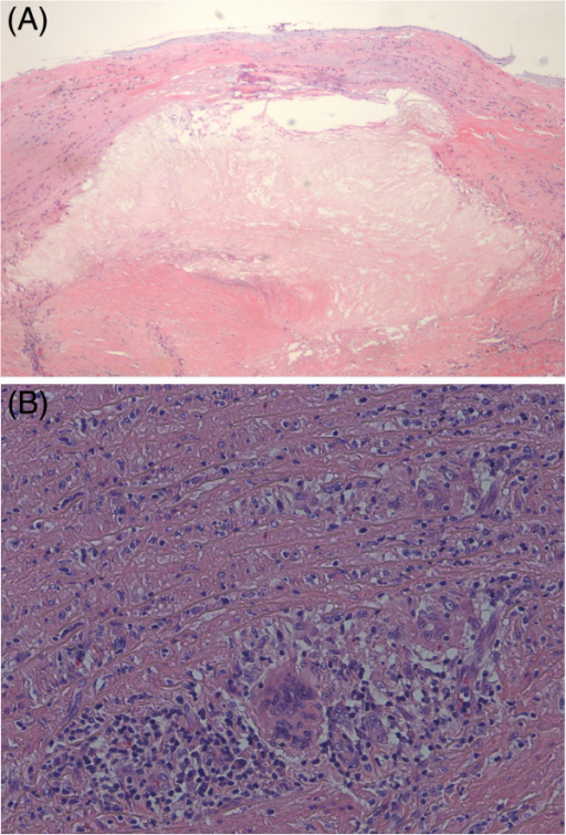Histpathological findings of aortic aneurysm from patient with GPA. (A) Histologic section showing considerable arteriosclerosis in the intima and media, with cholesterol clefts. There is intimal thickening with reduplication of the internal elastic lamina. The media is thickened, and the medial smooth muscle cells are replaced by pink hyaline material (hematoxylin and eosin, original magnification ×100). (B) Arteritis with giant-cell formation and lymphocyte and plasma cell infiltration around the vasa vasorum in the media is evident. The aortic media shows patchy infiltration by lymphocytes (plasma cells), with early disruption of the media (hematoxylin and eosin, original magnification ×270).