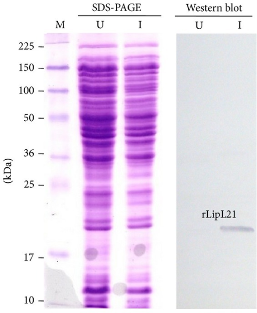 Expression analysis of rLipL21 on SDS-PAGE and Western blot. Lane U: uninduced lysates containing the pEL21 plasmid only; Lane I: auto induced lysates containing the pEL21 plasmid; Lane M: protein ladder.