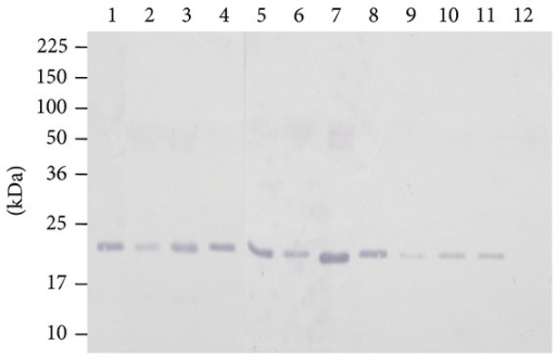 Immunoblot of panel of Leptospira spp. obtained by using rabbit anti-rLipL21-IgG antibody to detect single band in leptospiral LipL21 antigen in detergent phase. Lane 1: Canicola (strain Hond Utrecht IV); Lane 2: Hardjobovis (Sponselee); Lane 3: Autumnalis (strain Akiyami A); Lane 4: Icterohaemorrhagiae (strain RGA); Lane 5: Australis (strain Ballico); Lane 6: Pomona (strain Pomona); Lane 7: Grippotyphosa (strain Moskva V); Lane 8: L. kmetyi serovar Malaysia strain Bejo-iso 9T; Lane 9: Balum (strain Mus 127); Lane 10: Grippotyphosa (strain Moskva V); Lane 11: Hebdomadis (strain Hebdomadis); Lane 12: nonpathogenic species L. biflexa (strain Patoc 1). Molecular weight standards are indicated in kilodaltons.