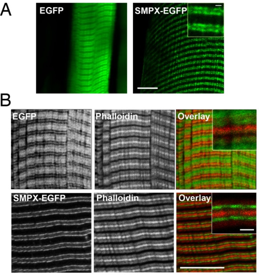 SMPX-EGFP was localized in bands flanking the z-disc.A) In situ confocal image of EGFP or SMPX-EGFP expression from an isolated EDL rat muscle in Ringer-solution. Scale bar is 10 microns. B) In vitro confocal image of EGFP or SMPX-EGFP stained with Alexa Fluor 680 Phalloidin (red) to visualize actin filaments. Scale bar is 10 microns (inset 1 micron).
