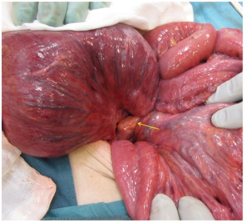 The enlarged pouch twisted around the long axis of its mesentery (arrow).