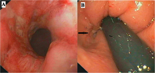 Colonoscopy. Panel A shows the rectal inflamed mucosa and panel B (arrow) the opening of an anal fistula.