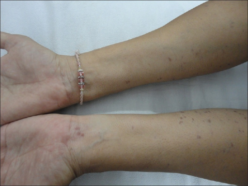 Violaceous to hyperpigmented maculo-papular lesions over both the forearms