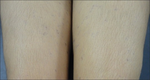 Violaceous to hyperpigmented maculo-papular lesions over both the thigh region