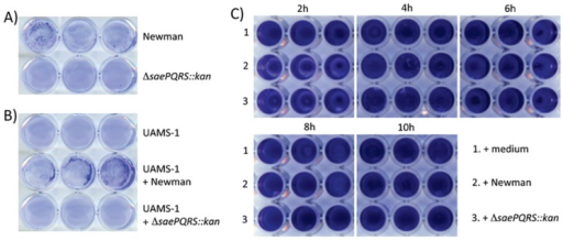 saeRS regulates attachment but not dispersal.(A) Stationary phase cultures of Newman and the ΔsaePQRS::kan strain were diluted into biofilm medium, inoculated into a 24-well plate and allowed to attach for 1 h at 37°C before washing and staining with crystal violet. (B) Supernatants from Newman and Newman ΔsaePQRS::kan were diluted into biofilm media and the attachment phenotype of strain UAMS-1 was tested with and without supernatant supplementation. (C) Newman (row 2) and Newman ΔsaePQRS::kan (row 3) culture supernatants were added at the indicated times following inoculation with UAMS-1. Wells in row 1 were supplemented with sterile medium rather than culture supernatant.