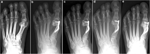 Case 7. A 55-year-old woman with mild HV; antero-posterior radiographic images at: a Preoperative period. b 1-month follow-up. c 3-month follow-up. d 6-month follow-up. e 48-month follow-up showing the maintained correction of the deformity