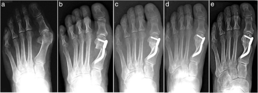 Case 2. A 64-year-old woman with moderate HV; antero-posterior radiographic images at: a Preoperative period. b 1-month follow-up. c 3-month follow-up. d 6-month follow-up. e 48-month follow-up showing the maintained correction of the deformity