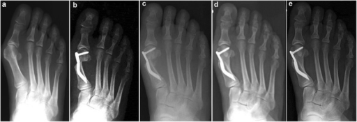 Case 4. A 51-year-old woman with moderate HV; antero-posterior radiographic images at: a Preoperative period. b 1-month follow-up. c 3-month follow-up. d 6-month follow-up. e 48-month follow-up showing the maintained correction of the deformity