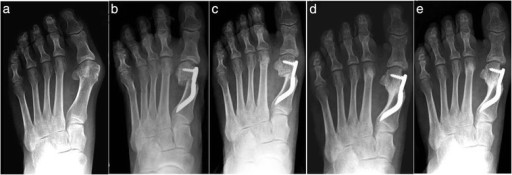 Case 6. A 54-year-old woman with moderate HV; antero-posterior radiographic images at: a Preoperative period. b 1-month follow-up. c 3-month follow-up. d 6-month follow-up. e 48-month follow-up showing the maintained correction of the deformity