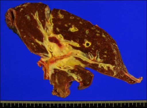 Gross photograph of the resected liver specimen. A wide area of the hepatic hilum was involved with extension beyond the bile duct, thus the whole paracaval portion had to be removed.