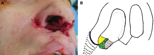 A, Subcutaneous nasolabial flap. B, Schematic picture of medial and lateral nasal floor flaps, alar rim incision, and subcutaneous nasolabial flap. Nasolabial subcutaneous flap makes the infrastructure and medial nasal floor flap covers it. Lateral triangular nasal flap is discarded and ala is advanced medially.