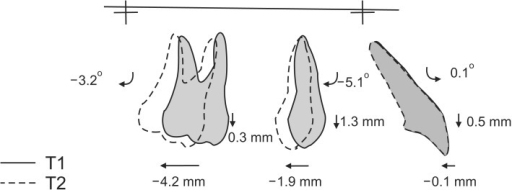 Graphic representation of maxillary superimposition for distal screw group, showing dentoalveolar changes during the distalization phase (T1-T2).