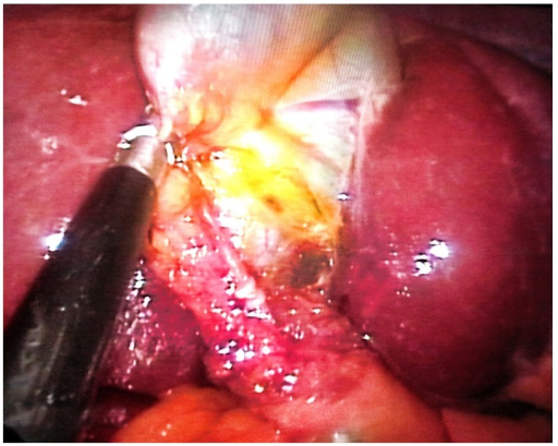 Single cystic duct, in front of dissected cystic artery, following the dissection of Calot.