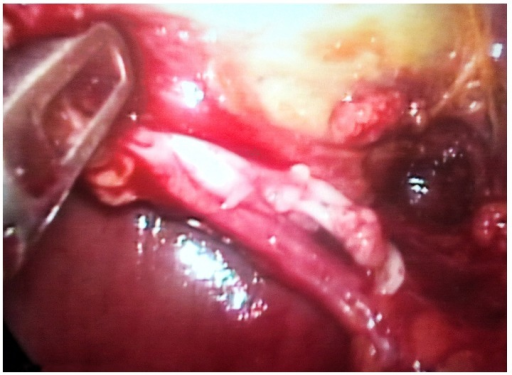 Clipped cystic duct.