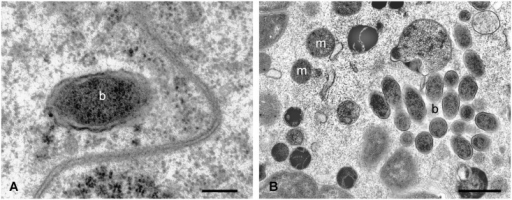 TEM micrographs of Ixodes ricinus pre-vitellogenic oocyte after feeding on guinea pigs infected with F. tularensis subsp. holarctica.The morphology of some inclusions is typical of a Gram-negative bacterium, and their size is congruent with that of bacteria from the Francisella genus. m: mithocondrium, b: bacterium. Scale bar: A 0.22 μm, B 1.1 μm.
