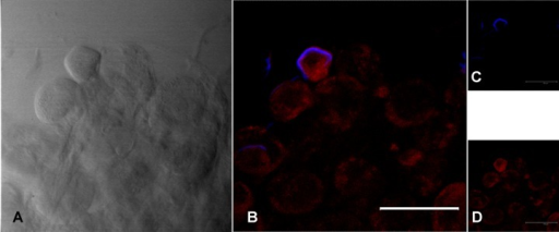 FISH staining with a probe specific for Francisella tularensis in Ixodes ricinus salivary glands from female after feeding on guinea pigs infected with F. tularensis subsp. holarctica.(A) Image obtained from light transmission; (B) Overlay image with blue signal for F. tularensis (23S rRNA probe for F. tularensis labelled with the fluorochrome Cy5) and red signal for universal eubacterial probe EUB338; (C) 23S rRNA probe for F. tularensis; (D) universal eubacterial probe EUB338. Scale bar: 100 μm.