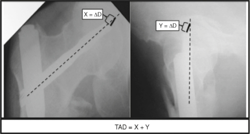 Tip-of-pin to apex-of-the-head distance (TAD).