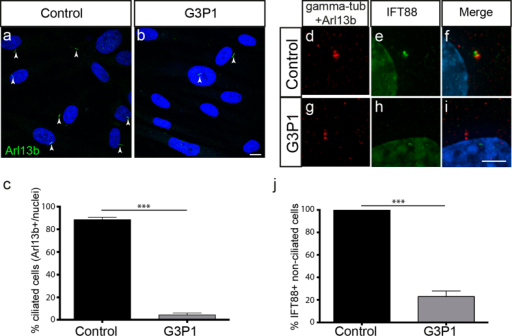 Ciliogenesis and IFT protein recruitment is impaired in fibroblasts isolated from G3P1.(a,b) Images showing a lower percentage of cilia (as marked by Arl13b staining) relative to DAPI-stained nuclei in serum-starved C2CD3-mutant fibroblast cultures (G3P1), compared to control juvenile dermal fibroblasts. Scale bar = 10 μm. Quantification is shown in (c). (d–i) Representative images of IFT88 staining (green) in non-ciliated cells (indicated by lack of red Arl13b staining along the axoneme) in serum-starved cultures. IFT88 localises to the centrosome (stained with gamma-tubulin in red) in control fibroblasts (d–f) whereas in fibroblasts isolated from G3P1, IFT88 is absent from most centrosomes (g–i). Scale bar = 5 μm. (j) Quantification of percentage of non-ciliated cells with IFT88-postive centrosomes in cultured C2CD3-mutant fibroblasts, relative to normal juvenile fibroblasts. ***p < 0.0001, error bars show SEM. All ciliated cells show normal localisation of IFT88 in both control and mutant cultures, reflecting the requirement for IFT88 in ciliogenesis.