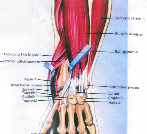 abductor pollicis longus muscle; extensor pollicis brevis muscle; radial artery; radial styloid process; navicular; trapezium; capitate; trapezoid; flexor carpi ulnaris muscle; extensor carpi ulnaris muscle; extensor digitorum muscle; ulnar styloid process; lunate; scaphoid; hamate; metacarpals