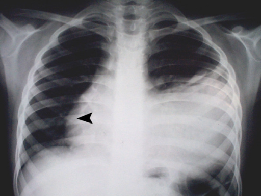 The PA chest X-ray: left-sided pleural effusion and a l ...