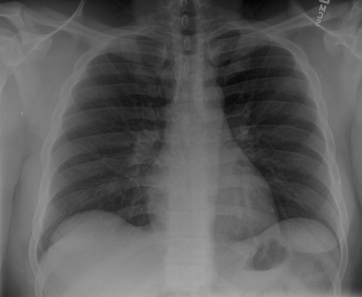 PA and lateral chest radiograph, XXXX at XXXX hours.