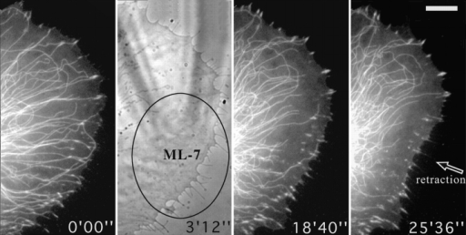 Locally applied ML-7 destabilizes microtubules and induces the dissociation of peripheral contact sites. Figure shows video sequence of a cell cotransfected with zyxin-EGFP and tubulin-EGFP that was treated topically, from time 0′00″ with a local application of 2 mM ML-7 through a microneedle (visible in the phase contrast image at 3′12″), over the region indicated by the ellipse. Bar, 10 μM. Video available at http://www.jcb.org/cgi/content/full/146/5/1033/F8/DC1