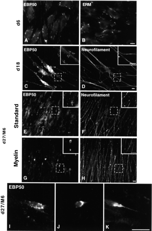 EBP50/ERM localization in premyelinating/induced DRG explant cultures changes from cell surface microvilli to a focal concentration at the SC tip. After 6 d in vitro, cultures were stained for (A) EBP50 and (B) ERM. Note the numerous cell surface microvilli present on migrating SC. After 18 d, cultures were stained for (C) EBP50 and (D) neurofilament. Bipolar SCs displayed microvilli along their length. Matched standard cultures (d27) and cultures induced to myelinate with serum and ascorbate (d27/M6) were stained for (E and G) EBP50 and (F and H) neurofilament. There was discrete localization of EBP50 to SC tips in the induced cultures. (I–K) These EBP50-positive tips were also found with varying morphologies. Bars, 10 μm.