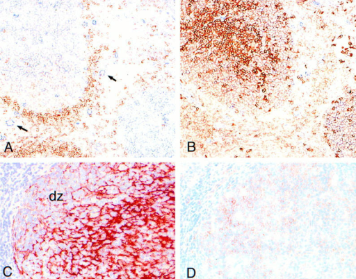 c-Met expression in the human tonsil. (A) Immunohistochemical double-staining for c-Met (blue) and IgD (red). c-Met is expressed by GC  cells and by vascular endothelium (arrows). Prominant IgD expression is present on B cells of the mantle zones. (B) Serial section of A, stained for c-Met  (blue) and CD38 (red). There are virtually no single c-Met–positive (blue) lymphocytes. Part of the GC cell show double staining (pink) (most clearly visible in the GC at the lower-right of the picture). A and B are not counterstained. (C) Immunohistochemical single-staining for DRC-1 (red) showing the  FDC-network of the GC. The FDC poor area at the left handside represents the GC-darkzone (dz). (D) serial section of C, stained for c-Met (red).  c-Met–positive cells are predominantly present in the GC-darkzone. C and D are counterstained with hematoxylin (blue).