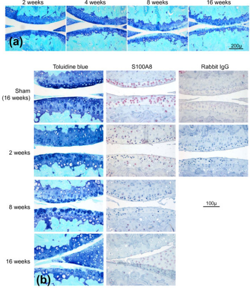 Histopathological examination of osteoarthritic changes in mouse knee (femoro-tibial) joints following medial meniscal destabilization (MMD). (a) Progressive cartilage damage at 2, 4, 8 and 16 weeks following medial meniscal destabilization-induced osteoarthritis (OA) in mouse knee joints. Toluidine blue/fast green stained paraffin sections. Scale bar = 200 μm. (b) Serial sections stained with toluidine blue or with S100A8 immunolocalization in mouse knees at different times following medial meniscal destabilization (MMD) or sham surgery (at 16 weeks). Scale bar = 100 μm. Negative control sections were immunostained using an equivalent concentration of rabbit IgG.