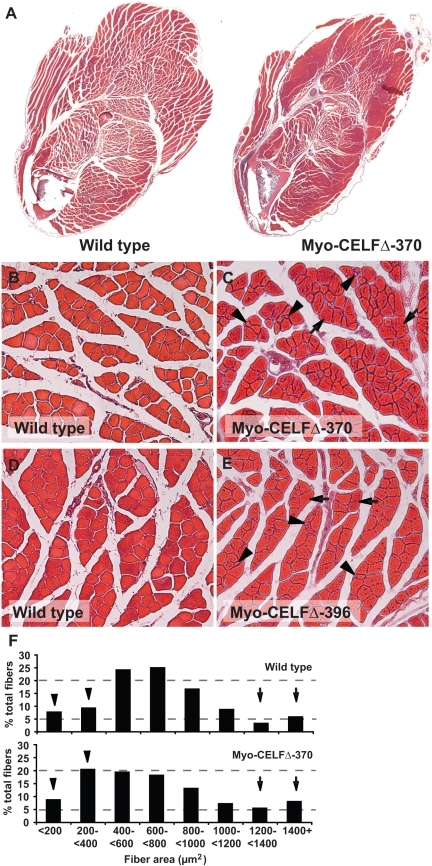 Myo-CELFΔ mice have altered skeletal muscle organizati | Open-i