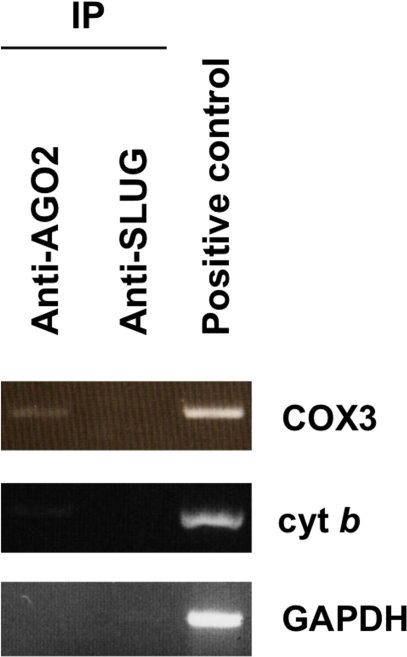 Co-immunoprecipitation of AGO2 and mitochondrial transcripts.Either AGO2, or SLUG, which serves as a negative control were co-immunoprecipitated with associated mRNAs in HeLa protein extracts. Coimmunoprecipitated RNA was extracted with Trizol and subjected to RT-PCR amplification with the indicated primers: cytochrome c oxidase III (COX3), cytochrome b (cyt b) and glyceraldehyde-3-phosphate dehydrogenase (GAPDH). Results are indicative of three independent experiments.