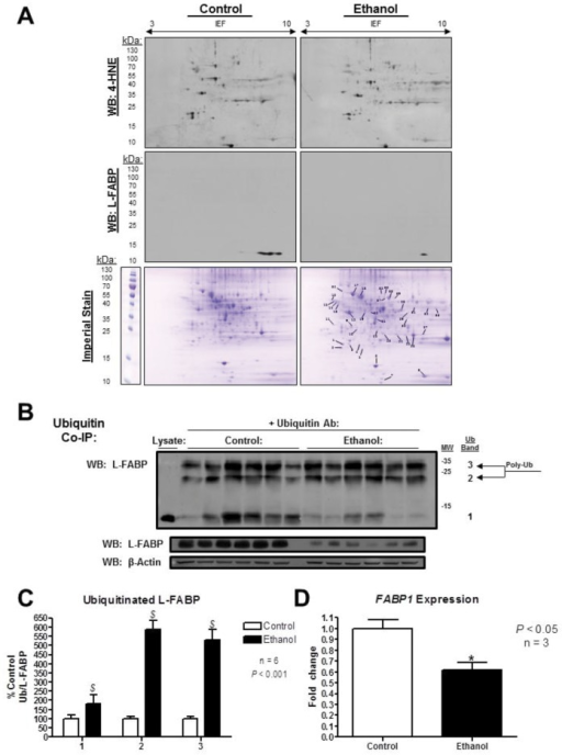 L-FABP was identified as a 4-HNE modified protein in cytosolic fractions of mice chronically treated with ethanol utilizing 2D SDS-PAGE and LC-MS.(A) 48 proteins in 39 spots were identified from 2D gels by matching up immunoblots probed with an anti-4-HNE antibody created in our lab. Immunoblots from both control and ethanol-fed mice reveal an increase in the total pool of 4-HNE modified proteins. A second set of gels were probed for L-FABP, while a third set was stained with imperial and used for protein excision, tryptic digest, and LC-MS identification. (B) In vivo stability of L-FABP was assessed via measurement of ubiquitin-tagged protein by co-immunoprecipitation with ubiquitin antibody. (C) Relative quantification of poly-ubiquitinated L-FABP was normalized to total L-FABP in the liver (P<0.001, n = 6). (D) FABP1 mRNA was measured by qPCR (P<0.05, n = 3).