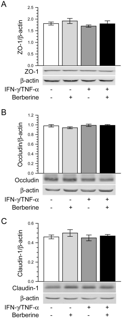Berberine does not affect the expression of tight junction proteins.Caco-2 monolayers were treated as described in Fig. 1A. Cell lysates were analyzed to detect the expression of tight junction proteins ZO-1 (A), occludin (B) and claudin-1 (C) by immunoblot. The total protein expressions of cellular tight junction proteins ZO-1, occludin and claudin-1 were not significantly altered by the treatment of Caco-2 monolayers without or with IFN-γ and TNF-α in the absence or presence of berberine. Data are representative of five similar experiments.