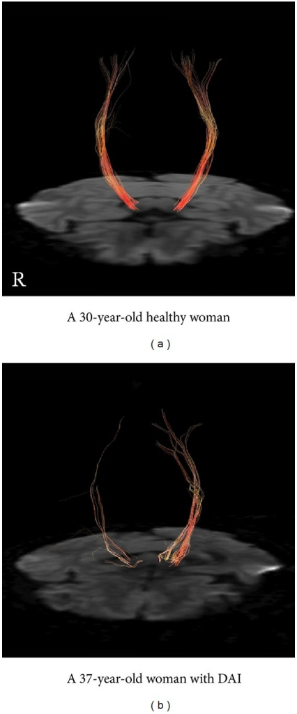 FT of CST from the seed area around the cerebral peduncle and the target area around the precentral gyrus. The right CST of the patient with DAI (tracked line, 118; drawn line, 6) is poorly depicted as compared with the left (tracked line, 252; drawn line, 34) and that of a healthy control (R: tracked line, 242; drawn line, 34. L: tracked line, 253; drawn line, 36).