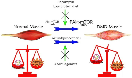 Schematic illustration of the correlation between autophagy and Duchenne muscular dystrophy. Basal autophagy levels are required for muscle homeostasis and for the maintenance of healthy myofibers. In DMD, muscle autophagy is impaired contributing to muscle degeneration. This autophagy inhibition is dependent on the iper-activation of Akt–mTOR axis. Treatments with rapamycin or low-protein diet, acting on Akt pathway, restore autophagy ameliorating DMD muscle phenotype and function. The impaired autophagy may also occur independently of Akt. Treatments with AMPK agonists, which increase AMPK activation, counteract the Akt-independent axes enhancing autophagy and inducing a positive effect in DMD muscle.