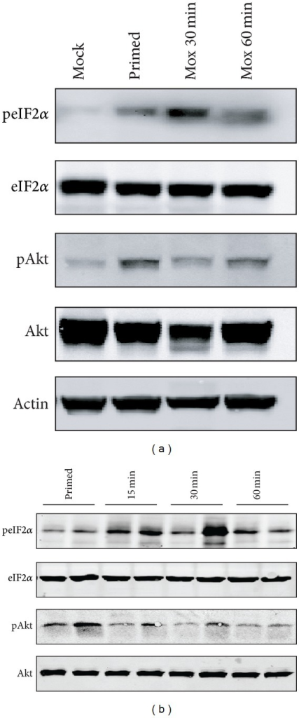Autophagic Akt and eIF2α pathways are activated by moxibustion. (a) Four mice per group were untreated or treated as indicated and equal whole cell extracts of macrophages from mice were mixed and signaling pathways detected as indicated. (b) Two random macrophage samples from six individual mice per group are shown.