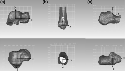 Anatomic coordinate system of the talus (a), tibia (b), and calcaneus (c).