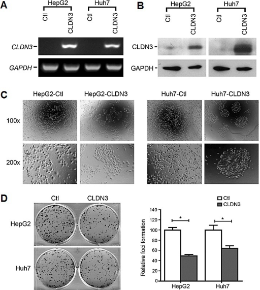 Morphological change and foci inhibition role of CLDN3 in HCC cellsEctopic expression of CLDN3 in HCC cell lines (HepG2 and Huh7) was confirmed by RT-PCR (A) and western blot (B). (C) Representatives of cell morphology of CLDN3-expressing cells (HepG2-CLDN3/Huh7-CLDN3) and control cells (upper, original magnification ×100; lower, ×200). (D) Representative of foci formation in monolayer culture. Quantitative analyses of foci numbers were shown in the right panel. Values were the mean ± SD of at least three independent experiments. *P<0.05; independent Student's t-test.