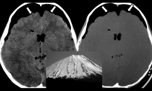"""Mount Fuji sign"" due to tension pneumocephalus is observed in axial CT sections (parenchymal and bone window, white arrows)"