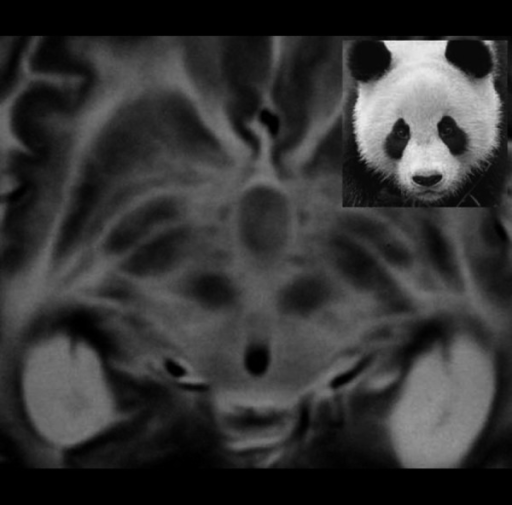 "A ""giant panda face"" is observed in a T2-weighted axial MR image in a case with Wilson syndrome."