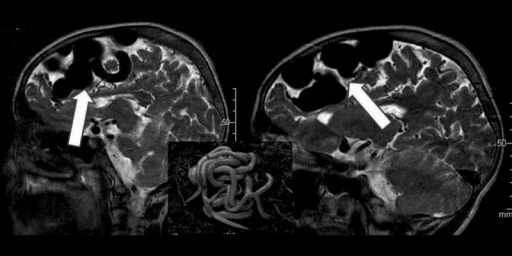"Sagittal T2-weigted MRI images showing a nidus of compact vessel with a typical appearance of ""bag of black worms"" in the left frontal region (white arrows)."